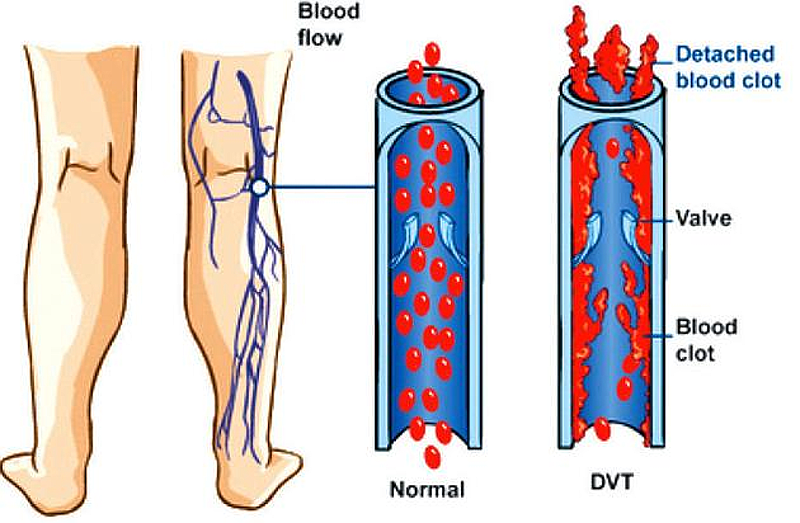 machine to prevent blood clots in legs